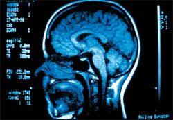 Tomografia computadorizada da cabeça: símbolo da década do cérebro. Foto: Nellie Solitrenick