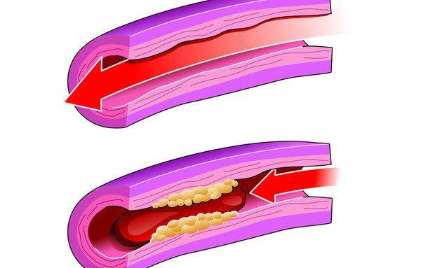 Ação das artérias entupidas. Imagem: Thinkstock
