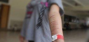 A automutilação – ou cutting – é uma prática perigosa encontrada por muitas crianças e adolescentes como forma de aliviar o sofrimento