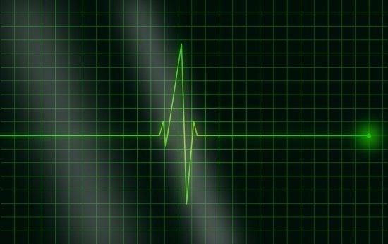Imagem do aparelho de eletrocardiograma