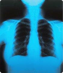 Radiografia do tórax de uma pessoa mostrando o chip de computador e uma bateria colocados sob a pele, aparelho que combate a epilepsia. Foto: Cláudio Rossi